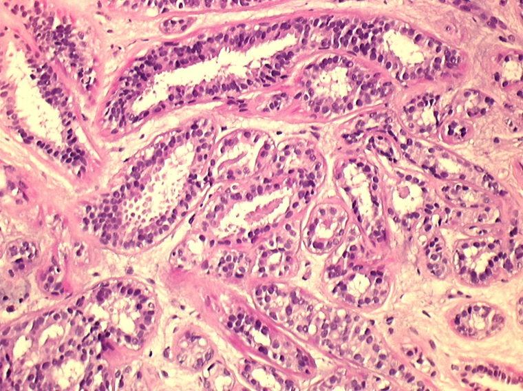 Carcinoma mammario - tumore al seno
