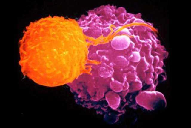 cellula cancro linfoma
