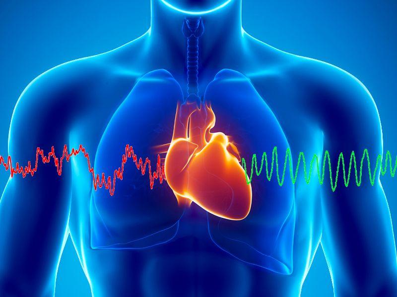 malattie cardiocircolatorie, malattie cardiovascolari prima causa di morte nel mondo