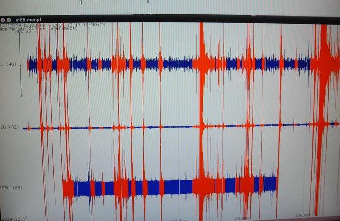 terremoto sismografo