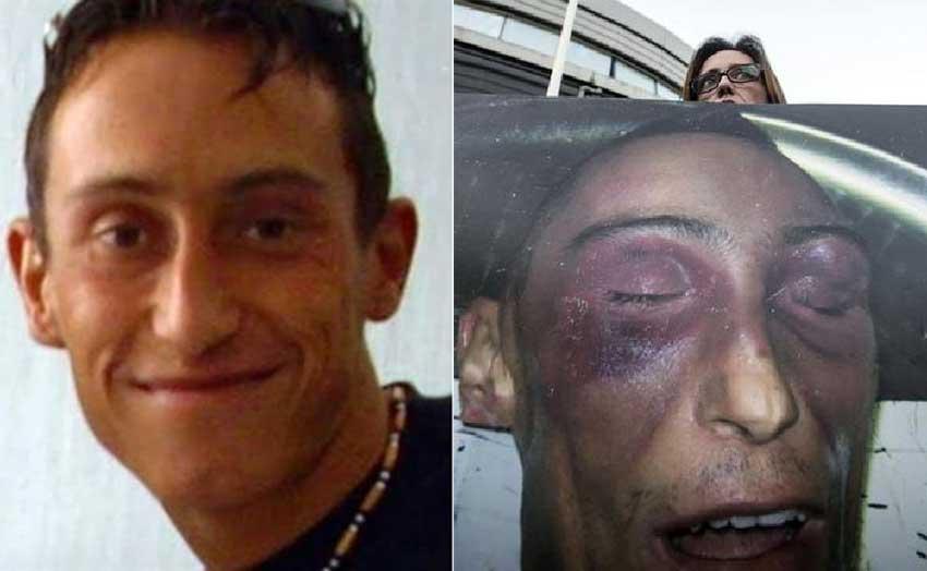 Stefano Cucchi prima e dopo